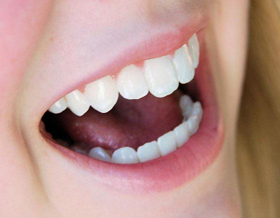 Clareamento Dental – Dicas e Tratamento