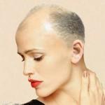 enxerto-de-cabelo-para-mulheres-5
