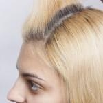 enxerto-de-cabelo-para-mulheres-8