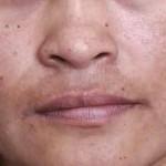 receita-clareadora-para-manchas-no-rosto 6
