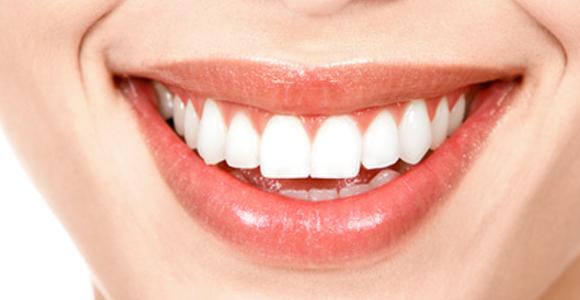 Odontologia Estética – O que é ?